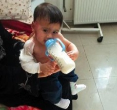 Seven-month-old Dia'a* sustained burns to his face and arm after a shell hit his house, causing a nearby water heater to burst water onto him. Photo credit: USAID NGO Partner