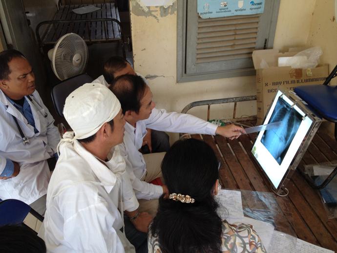 X-ray technicians in Cambodia are trained to identify characteristics that define TB. / Seak Kunrath
